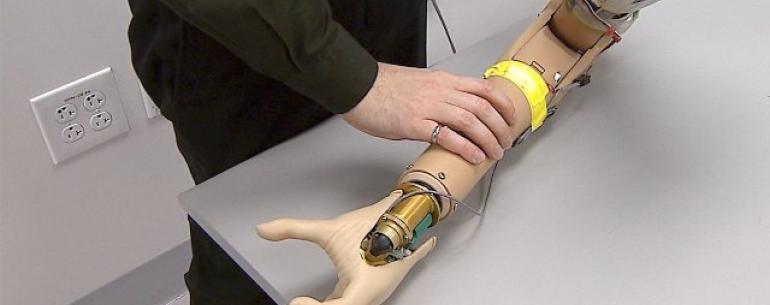 Интерфейс мозга добавляет ощущение присутствия в бионические конечности