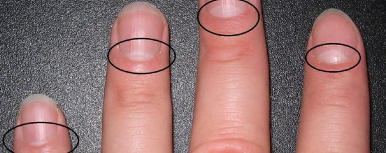 А Вы знаете о чем могут сказать ЛУНКИ на ногтях